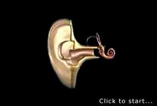 Tinnitus masker cd xp